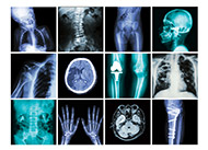 The dangers of CT scans and X-rays